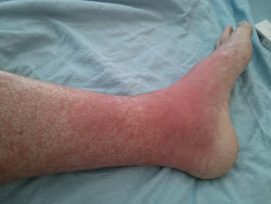 Skin GVHD - Foot