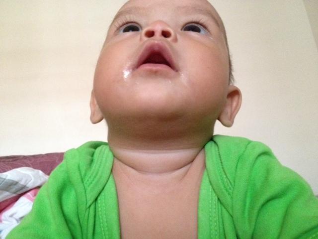 Tips tangani bayi naik ruam