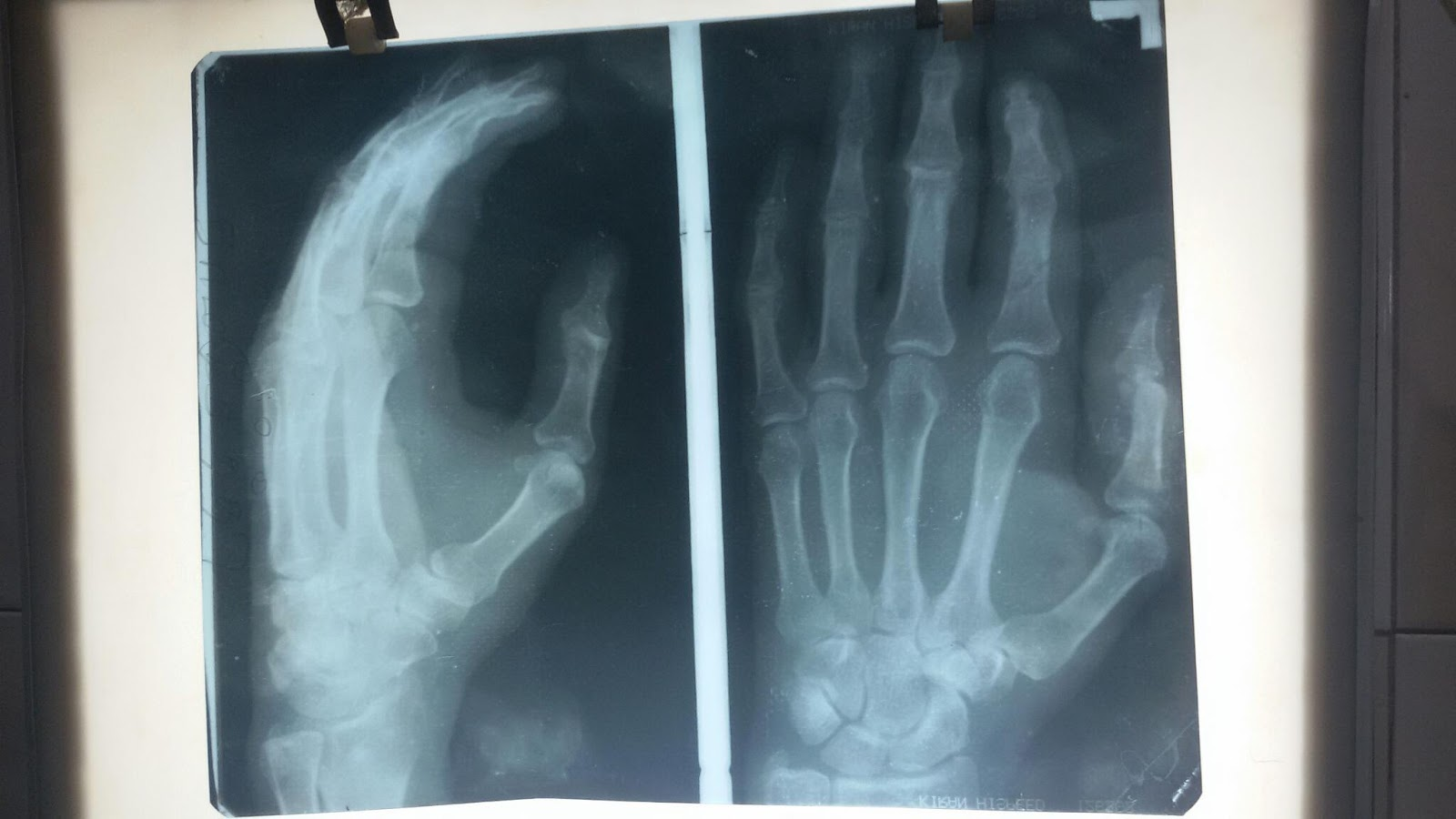 VIDHUNS PLASTIC SURGERY AND COSMETIC WORLD: Post op xray