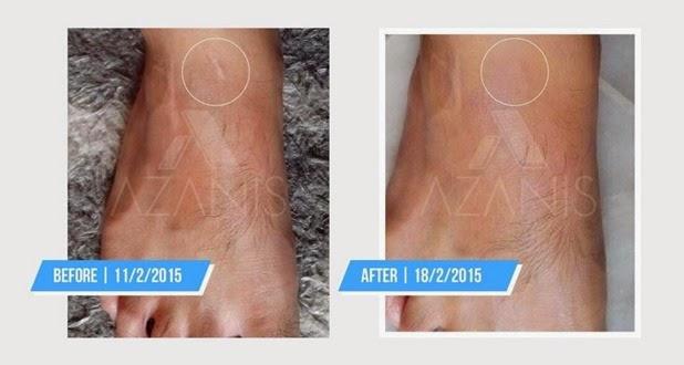 azanis scar serum testimonial