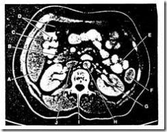pemeriksaan radiology dengan ct scan
