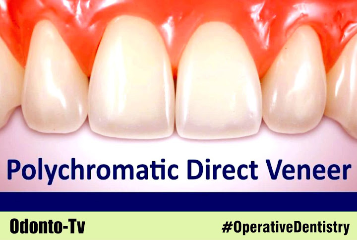 polychromatic-direct-veneer