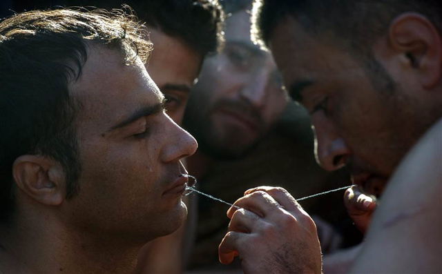 An Iranian migrant has his lips stitched together in an act of protest against restrictions imposed by Balkan countries on the movement of migrants on 23 November 2015. Photo: Georgi Licovski / EPA