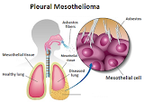 Symptoms and Signs of Mesothelioma