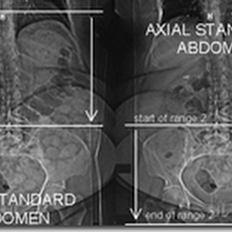 Pemeriksaan radiologi Standard abdominal & pelvic Imaging