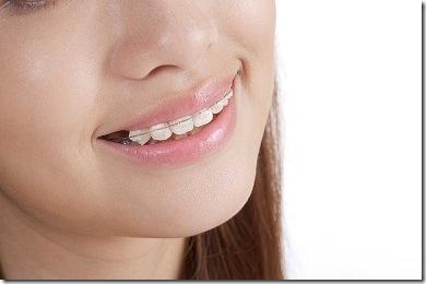 girl wearing braces
