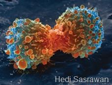 Hasil perbesaran mikroskop elektron (warna tidak nyata) menunjukkan sel kanker paru-paru yang sedang membelah