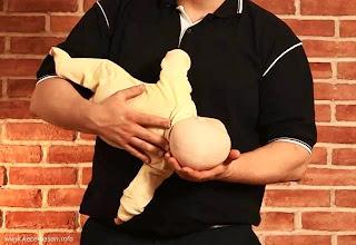 Posisi pemulihan bayi, perhatikan kedudukan kepalanya yang lebih rendah.
