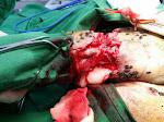 後腿肌肉血管非常豐富,切割的時候必須十分小心