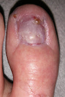 Big Toenail Removal - Left Foot - 14 Weeks & 4 Days