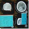 pemeriksaan radiology kepala ct