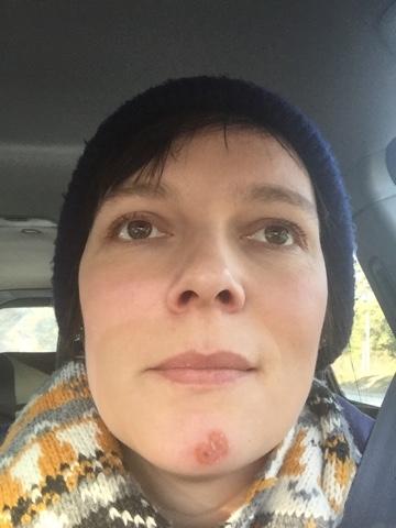 vätskande sår på hakan