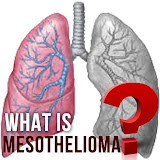 Lawyers, attorneys, Law firm for consulting about mesothelioma compensation.