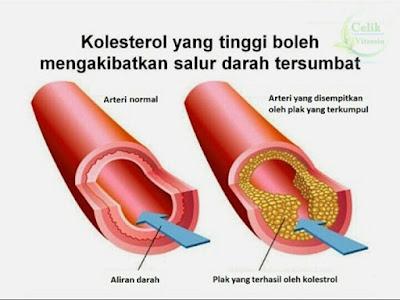 saluran darah tersumbat