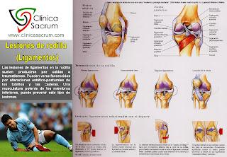 Lesiones de ligamentos de la rodilla