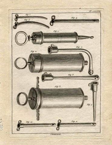 Siringhe per clistere (stampa del XVIII sec)