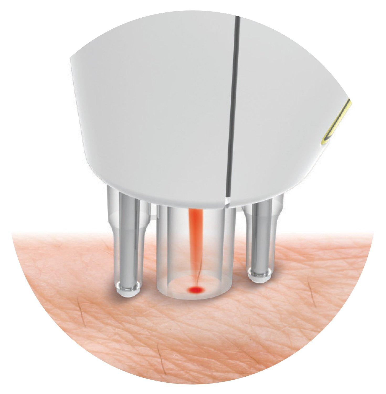 prezzo epilatore laser