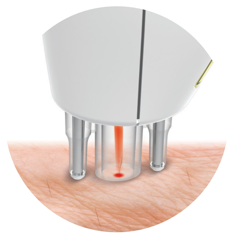 Un Epilatore laser portatile Rio Dezac epilator