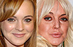 10 Celebrities before and after Botox