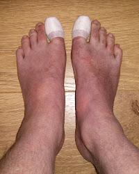 Big Toenail Removal - Plastered Big Toes