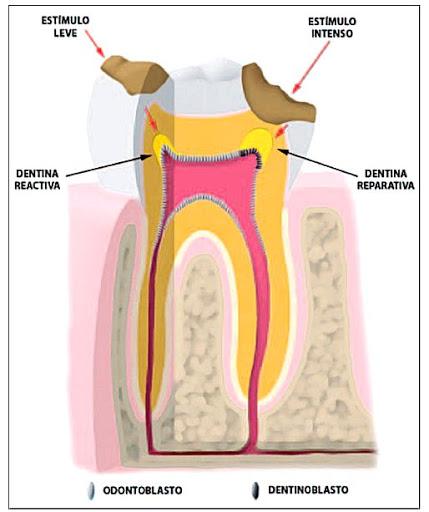 endodoncia-preventiva