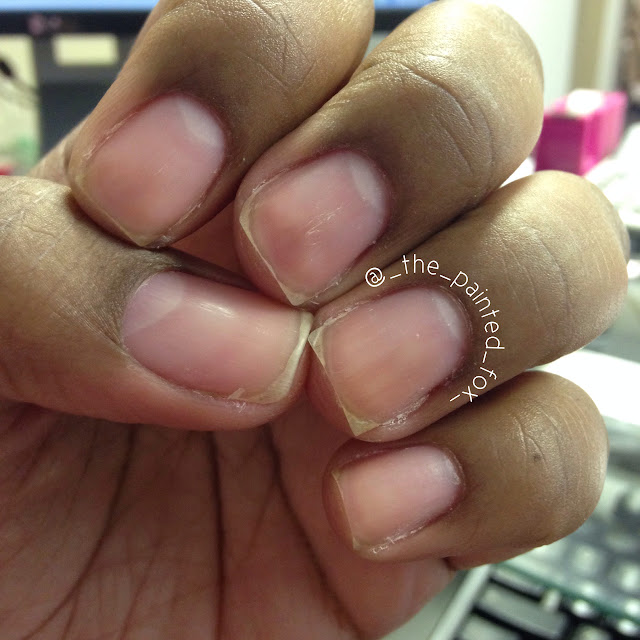 As You Can See The Cuticle Area Is Dry And Peeling Theres Cracked Skin On Both Sides Of Nail