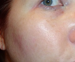 Before using Simply NonToxic Mega-C Brightening Serum_2