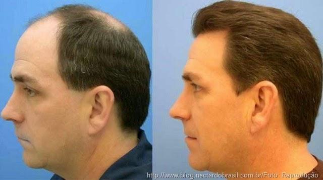 Transplante-capilar-resultados