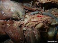 arch_of_aorta.JPG