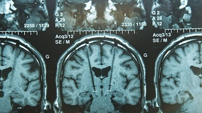 US-develops-brain-implant-fix-wounded-soldier-memory