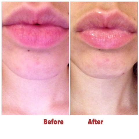 How to Make Your Lips Look Plumper Without Makeup