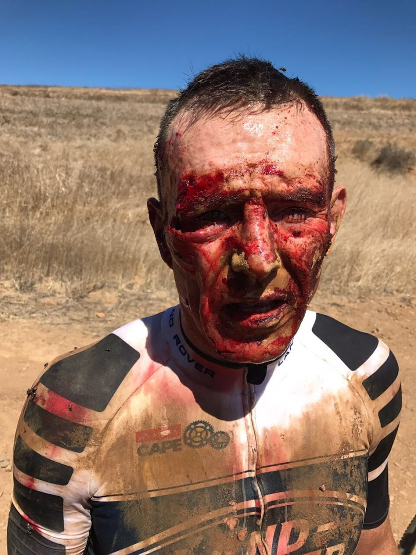 Joel Stransky after his fall during the Absa Cape Epic Picture: ARRIVE ALIVE