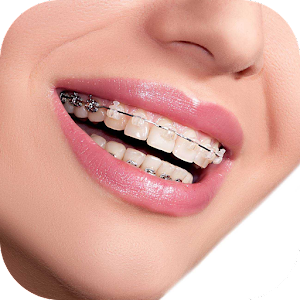Real Braces Camera For PC