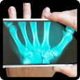 X Ray Prank Hand
