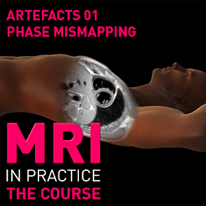 MRI Artefacts 01