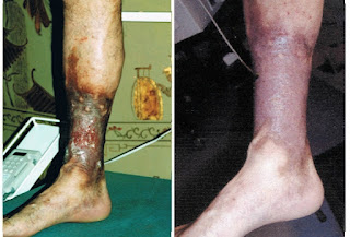 vein treatment before after