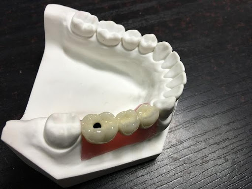 Implant Crown And Bridge