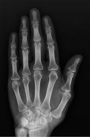 android Xray Scan Blague Screenshot 4