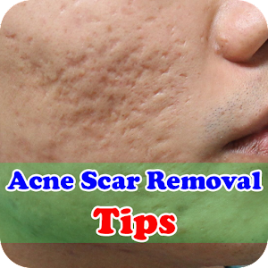Acne Scar Removal Home Remedies for PC-Windows 7,8,10 and Mac