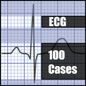 ECG 100 Clinical Cases for Android