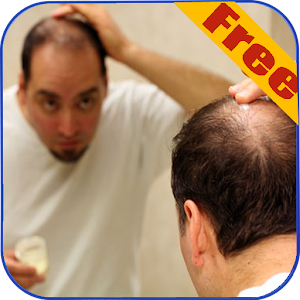 Hair loss Prevention Tips