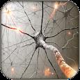 Multiple Sclerosis EDSS Trackr