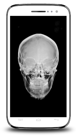 android X-ray Scanner Prank Screenshot 7
