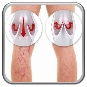 Download Varicose Veins APK