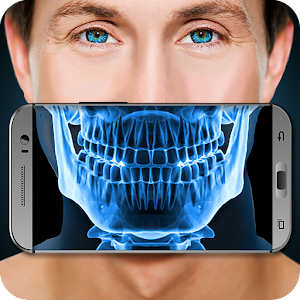 Xray Scanner Teeth Prank