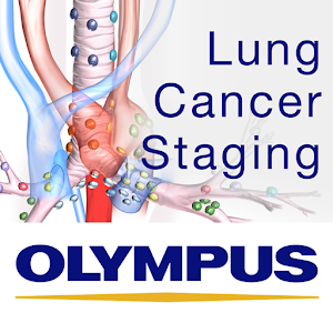 Lung Cancer Staging Table