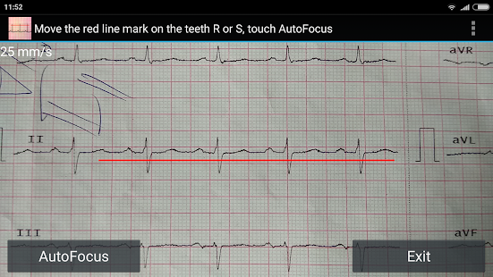 ECG Reader screenshot for Android