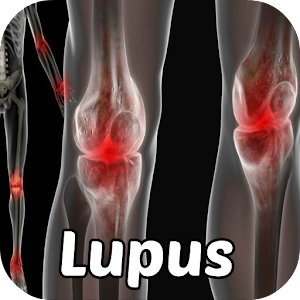 Lupus Symptoms Disease