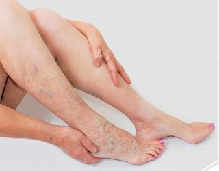 Narre warren vein disease treatment