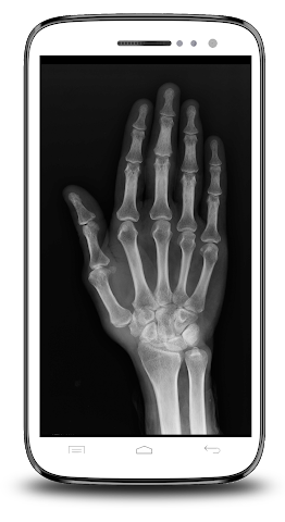 android X-ray Scanner Prank Screenshot 6